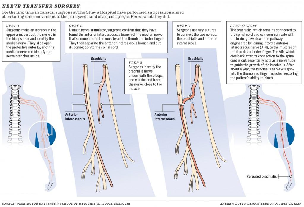 0314-nerve-transfer-surgery