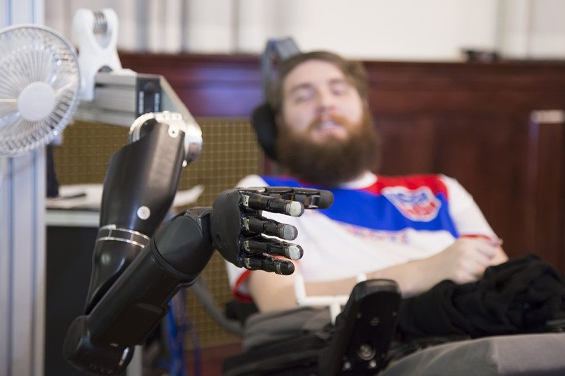 Nathan Copeland feels the touch on the robot hand as coming from his own hand UPMC and University of Pittsburgh Schools of the Health Sciences
