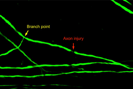 Injury to a spinal cord axon after a major branch point.