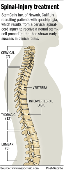 PG graphic: Spinal-injury treatment