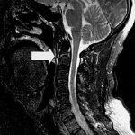 Fracture C2 Vertebra