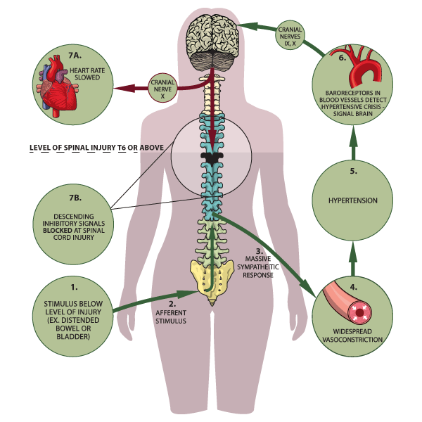 Autonomic Dysreflexia Is A Life Threatening Condition