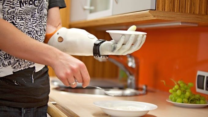Three men have had bionic hands grafted onto their arms. Credit: Otto Bock Healthcare