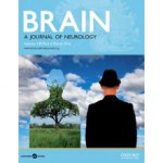 brain-oxfordjournals-cover