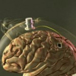 braingate-wireless-computer-brain-interface
