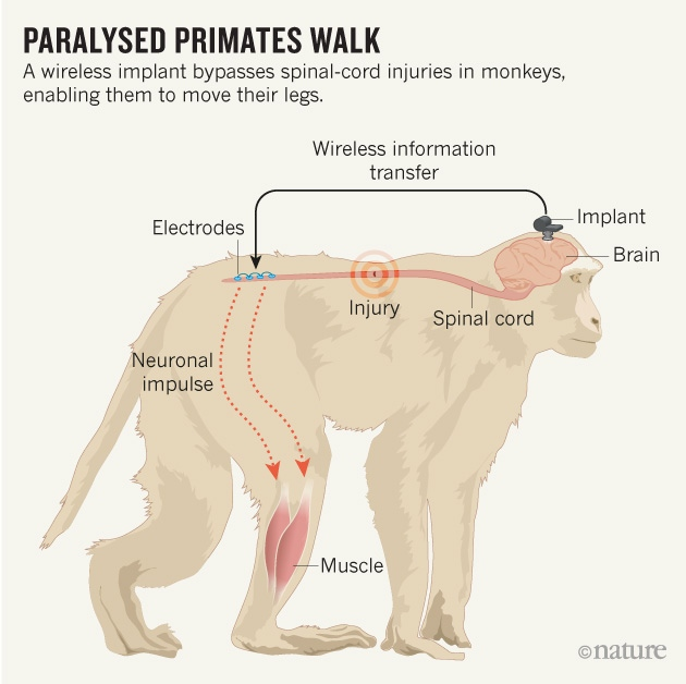 A wireless implant bypasses spinal-cord injuries in monkeys, enabling them to move their legs. [Adapted from Jackson, A., Nature, 539 177-178 (2016).]