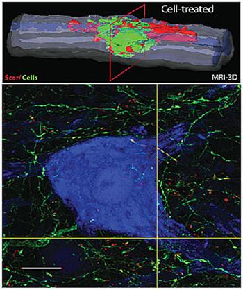 سه بعدی، بازسازی تصویر رزونانس مغناطیسی (بالا) نشان می دهد حفره های ناشی از آسیب نخاعی تقریبا با پیوند سلولهای بنیادی عصبی، سبز رنگ پر شده است. تصویر پایین تر نتیجه عصبی از سلول های عصبی انسانی پیوند (سبز) و توسعه ارتباطات قلمداد شده (نقطه زرد) با نورون میزبان (آبی رنگ) را به تصویر می کشد.