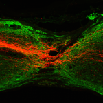 sagittal section shows regineratin