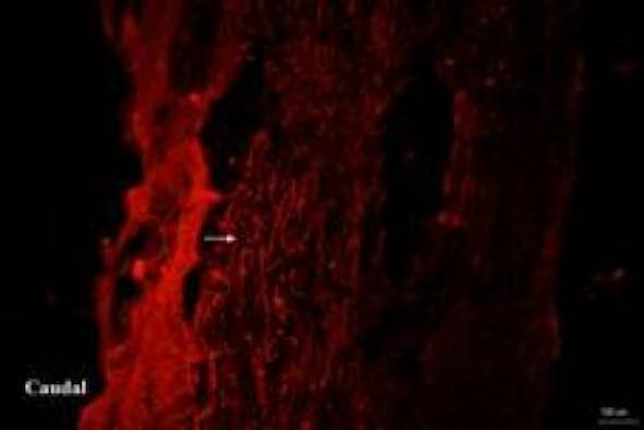 This is the effect of step training on growth-associated protein-43 (GAP-43) expression at the site of the spinal cord lesion in rats with incomplete spinal cord injury. The white arrows indicate GAP-43 positive axons. Credit: Neural Regeneration Research